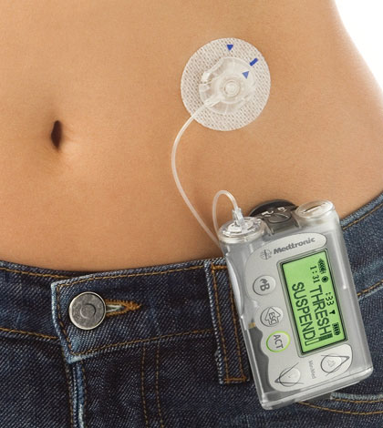 insulin-pump-pros-and-cons